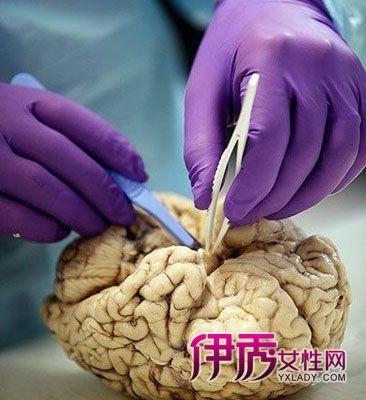 史蒂夫/近日,摄影师在大脑库中全程见证了史蒂夫/简特曼教授解剖大脑并...