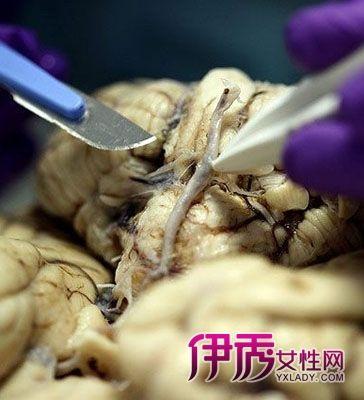 史蒂夫/胆小者勿进,揭秘大脑解剖全过程!近日,摄影师在大脑库中全程...
