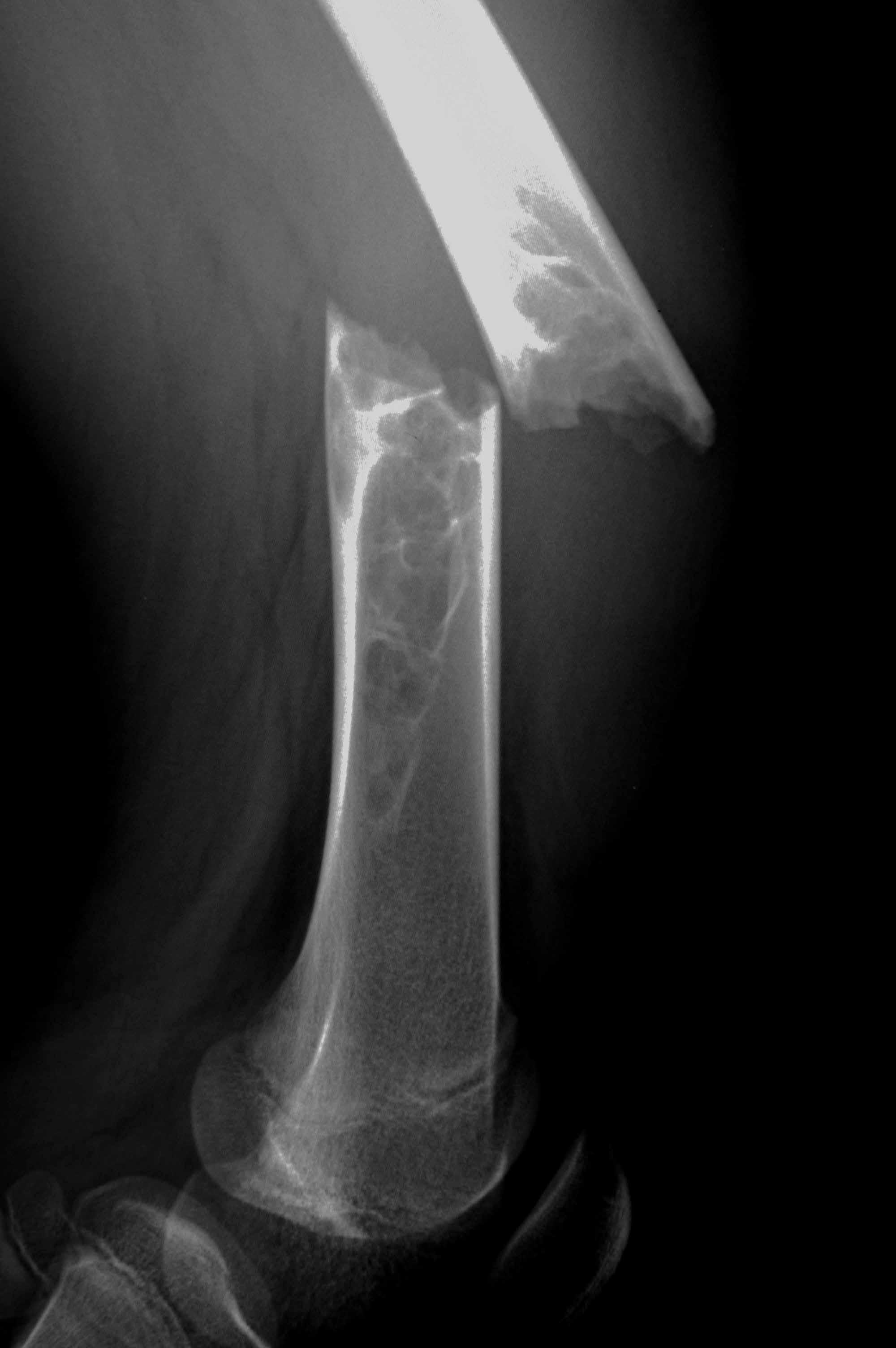 骨折病人吃什么好_骨折愈合时间_骨折病人的