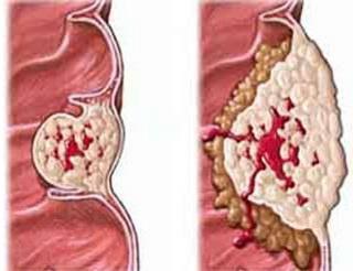 咽喉热是什么原因
