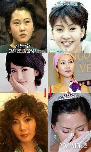 揭秘韩国女星们整容后遗症不可不知的秘密