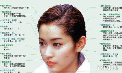 两颊长斑_【图】女人长斑的位置图解 揭秘容易长斑的五个时期_长斑的位置 ...
