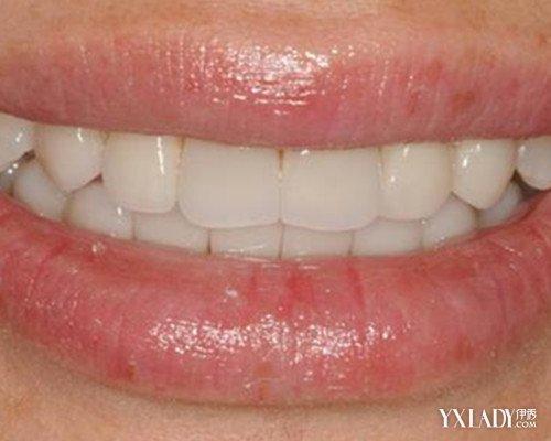 牙齿矫正的危害 值得注意的5大危害图片