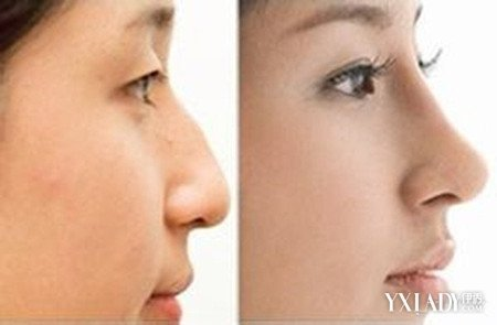 垫鼻子怎么做 垫鼻子手术的详细过程及适用人群