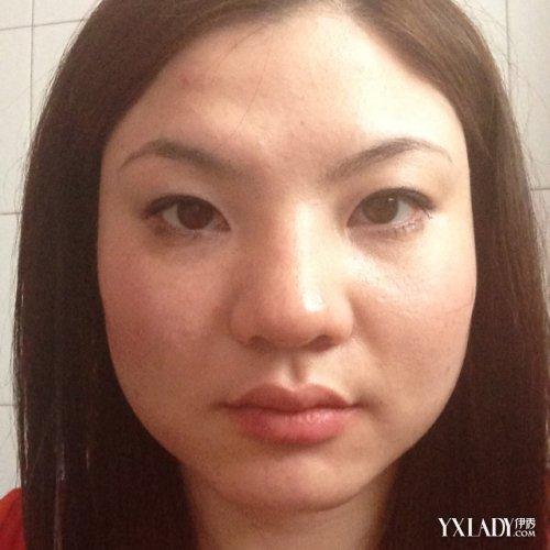 【图】鼻子肥大是怎么回事 如何能够使鼻子变