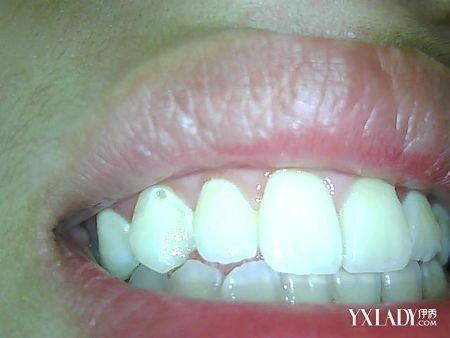 如何使用牙线_【图】牙齿有洞不补会怎样 几个小妙招如何教你保护好牙齿(2 ...