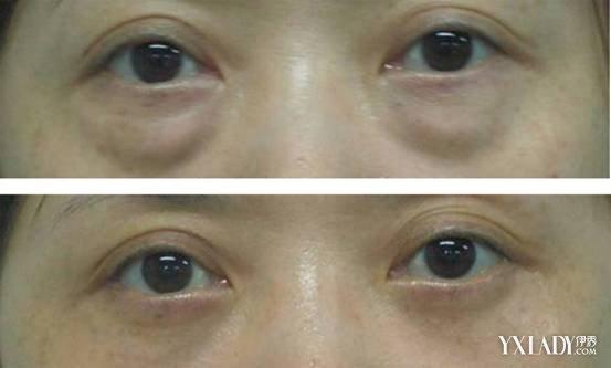眼袋和黑眼圈有什么区别 眼袋和黑眼圈区分的方法及治疗方法