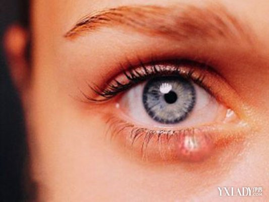 【图】眉毛剃了长不出来怎么办?  10种偏方让你重新拥有浓眉