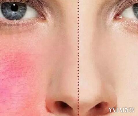 【图】激光祛斑祛红血丝效果好吗 还你完美光滑肌肤<美肤>