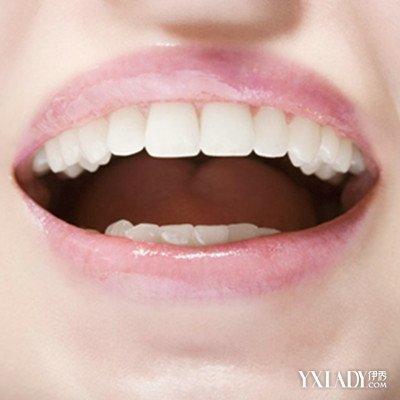 【图】内源性牙黄怎么变白呢 6个妙招让你拥有洁白牙齿