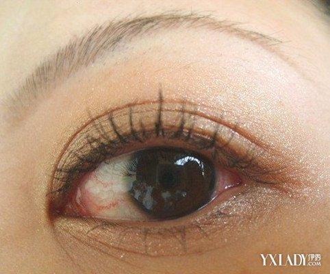【图】眼下松弛用激光能去除吗    7个小妙绝让你恢复美眼