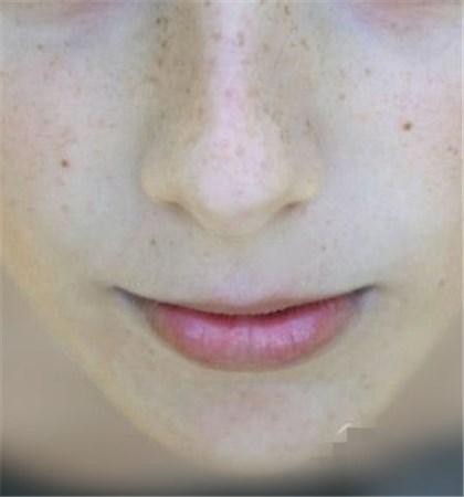 【图】有效去黑头的方法小妙招 10个步骤还你干净嫩鼻子<美肤>
