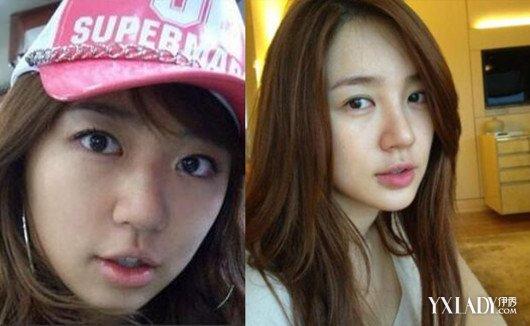 【图】韩国女星假脸走天下 整容前后照片曝光<美肤>
