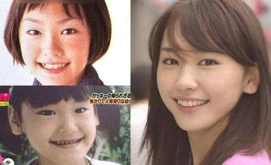 【图】日本女星整容前后对比照 看她们怎么变美!<美肤>