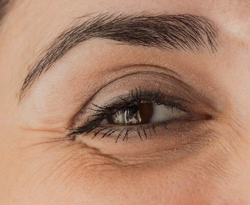 去除眼部小细纹_【图】眼睛皱纹多怎么办 几招教你轻松解决_眼睛皱纹多怎么办 ...