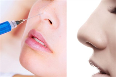 自己注射玻尿酸隆鼻_【图】玻尿酸隆鼻的危害 手术之前你一定要了解_隆鼻_伊秀美容 ...