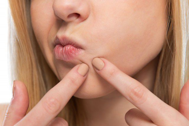 嘴唇周围长痘痘是什么原因,嘴唇周围长痘痘怎么调理  美容护肤 养颜 美容护肤知识 护肤小经验 护肤小知识 美容护肤常识 上火 排毒 第3张