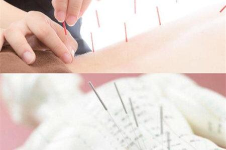 针灸减肥反弹吗_【图】针灸减肥法效果如何 了解原理轻松变瘦_针灸减肥法_伊 ...