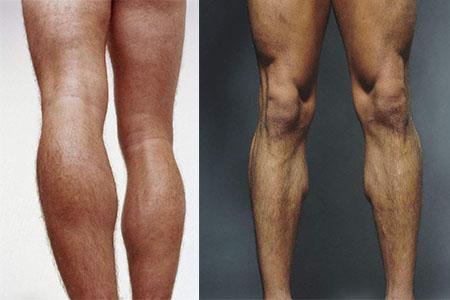 正常女生腿型_【图】男生标准腿型图片 看看你是哪一种_腿型_伊秀美体网|yxlady.com