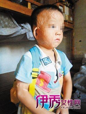 孩子被烫伤寻找1年无幼儿园愿接收